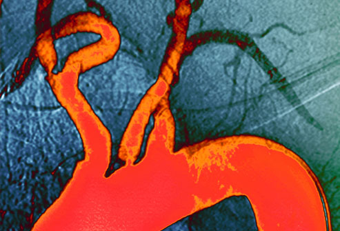 الكولستيرول في الأوعية الدموية
